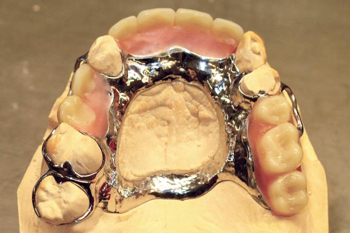 chrome-denture