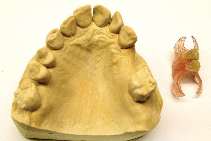 Flexible Dentures ireland