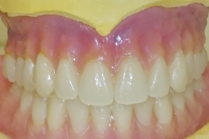 Full Upper And Lower Dentures