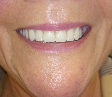 Ultra Stable Lower Dentures