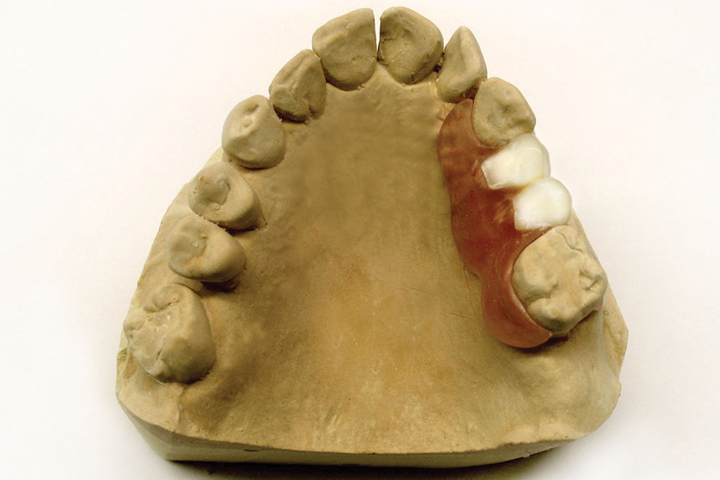 Flexible Dentures cavan